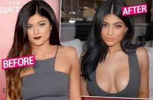 kylie-jenner-plastic-surgery-boob-job-rumors-pp